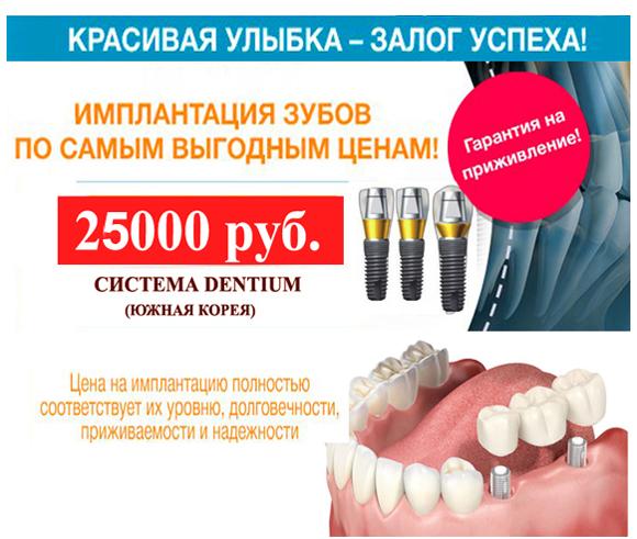 implanty-dentium